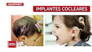 Hipoacusia - Audífonos, Implantes