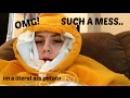MY WISDOM TEETH REMOVAL AFTERMATH... | Chloe Arden