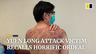 Attack victim at Hong Kong's Yuen Long station recalls horrific ordeal