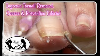 👣 Ingrown Toenail Removal Causes and Prevention Pedicure Tutorial 👣