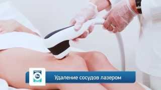 Лазерное удаление сосудов(Единственный способ избавиться от сосудов на лице, которые просвечивают через кожу – это лазерное удаление., 2014-12-23T13:09:31.000Z)