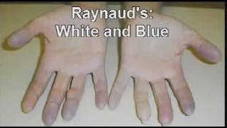 Systemic Scleroderma Symptom Photos
