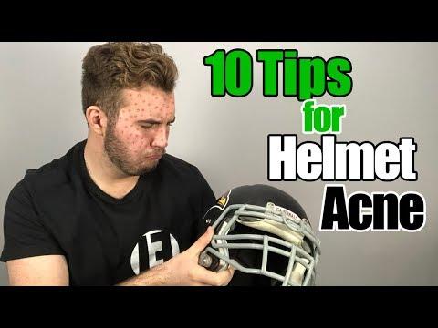 STOP HELMET ACNE | 10 Tips and Tricks