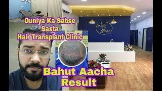 10 Rs Per Graft Hair Transplant || Cheap And Best Hair Transplant Clinic In India