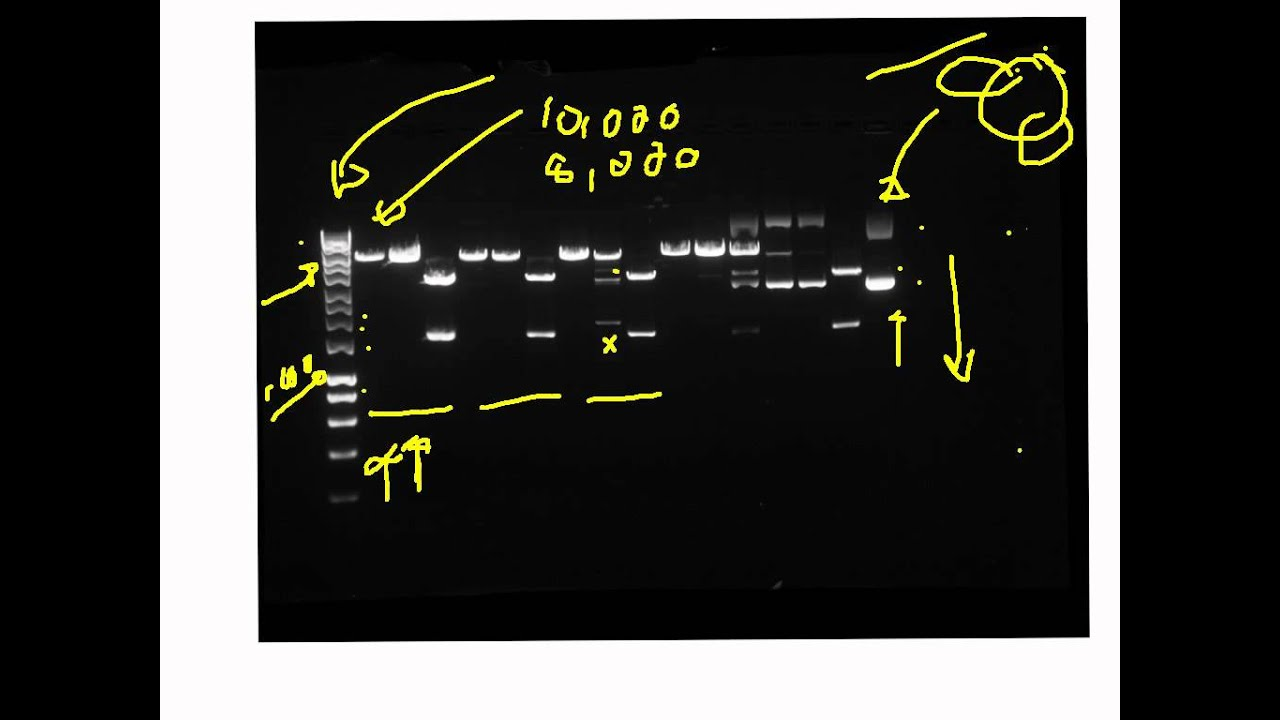 dna profiling using capillary gel electrophoresis biology essay Dna profiling using capillary gel electrophoresis  retrieved from https://www ukessayscom/essays/biology/dna-profiling-using-capillary-.