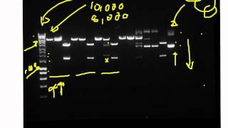 Explan' of pGLO agarose gel results