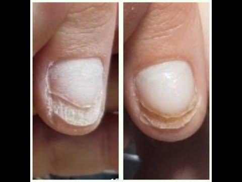 Отрастание онихолизиса, 2 часть.Проблемные ногти.