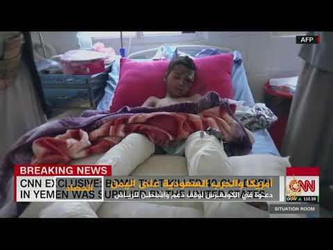 الكونغرس يدعو لوقف دعم الرياض في حرب اليمن