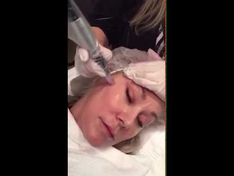 Video about Orange County Patient has a Rejuvapen® Micro-Needling Treatment