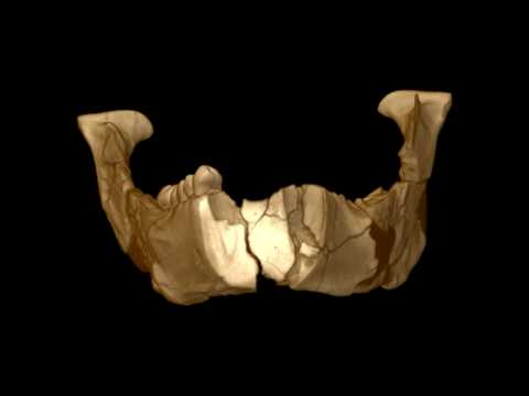 Jawbone Of The Famous Lucy Fossil In 3D
