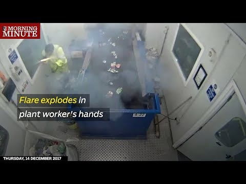 Flare explodes in plant worker's hands