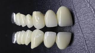 видео Пластмассовые коронки зубов