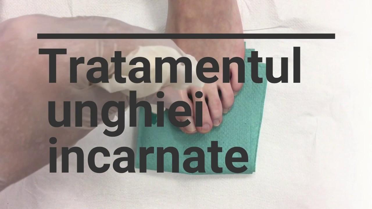 Dureri la picioare cu varice și alte semne de varice la nivelul picioarelor, tratament la domiciliu