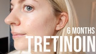 6 MONTH TRETINOIN/RETIN A UPDATE: ACNE, ACNE SCARS & WRINKLES