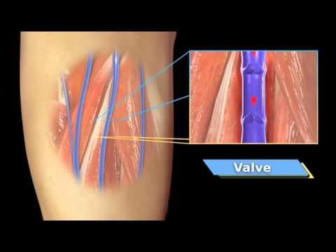 VenaCure for Varicose Vein Treatment Palmetto Vein & Aesthetic Center