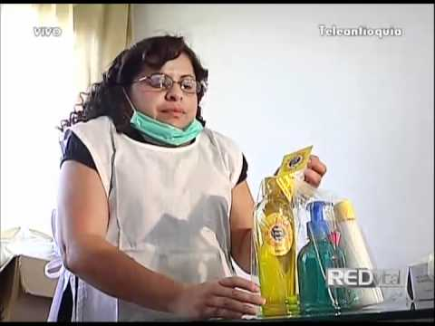 Resultado de imagen para Síndrome de Turner mujeres