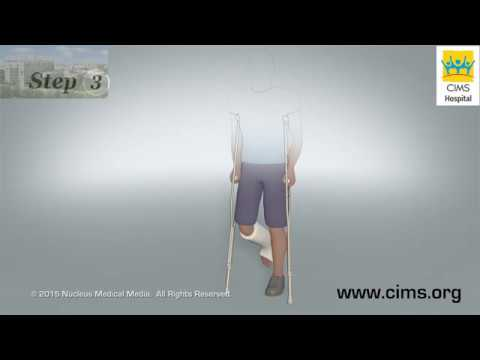 Using Crutches Discharge Instructions - CIMS Hospital