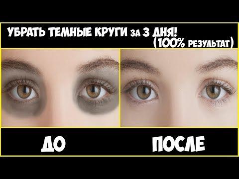 Как убрать темные круги под глазами за  3 ДНЯ !!!