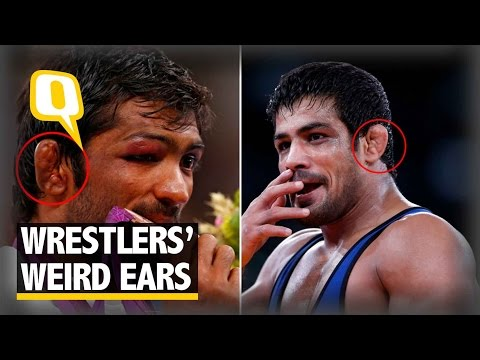 The Quint: Why Wrestlers Around the World Have Weird Ears