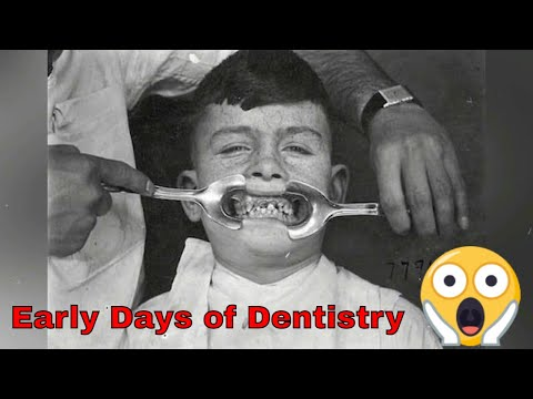 Scary Photos Show The Early Days Of Dentistry
