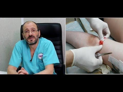 Липоматоз - причины, лечение, операции, стоимость.