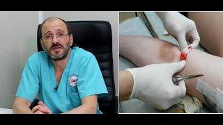 видео Лечение множественных жировиков