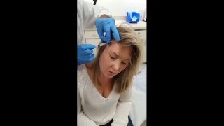 Alopecia Steroid Injections