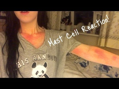 ♡ Major Mast Cell Reaction, living with MCAD😓 | Amy's Life ♡