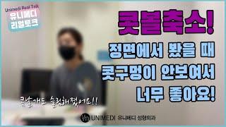유니메디 리얼토크 :: 콧볼축소 실제 후기 #8 / 수…