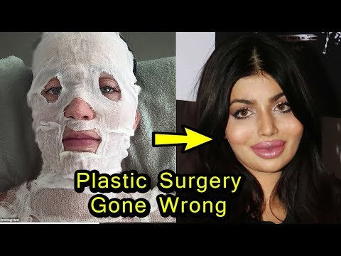 Thumbnail: 8 Bollywood Actress Plastic Surgery Gone Wrong | Then and Now
