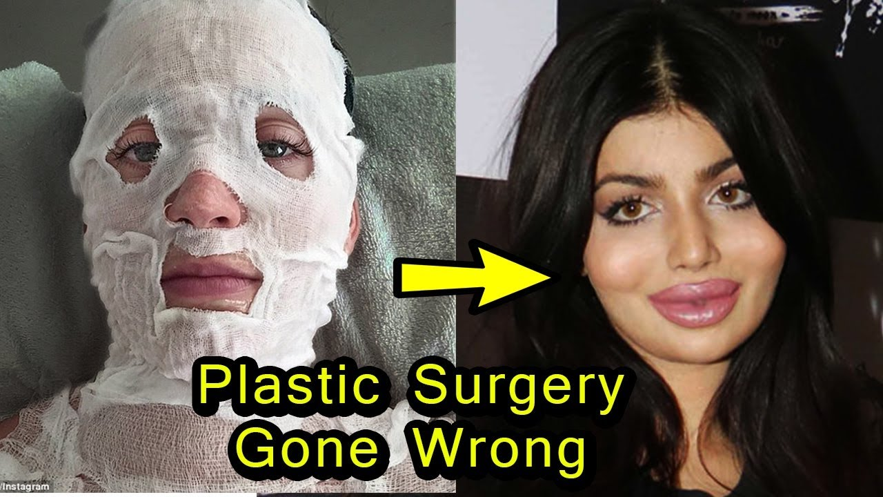 8 bollywood actress plastic surgery gone wrong | then and now - youtube