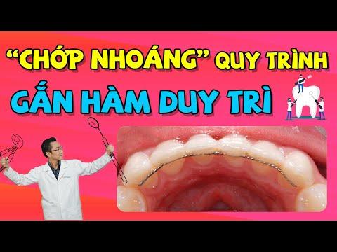 cách vệ sinh răng miệng khi niềng răng tại Kemtrinam.vn