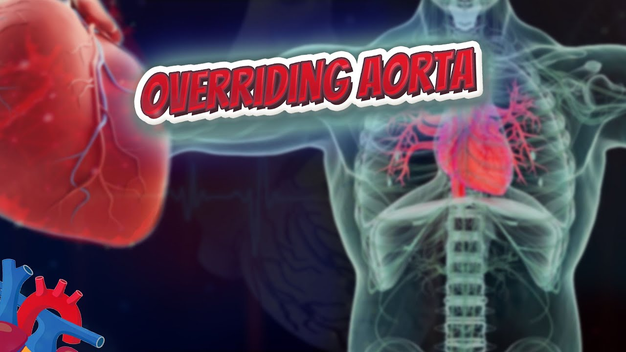 Overriding Aorta Human Heart And Cardiology