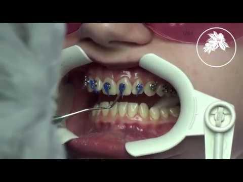 Установка брекет-системы Damon Q на верхнюю челюсть