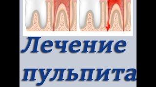 Как лечить пульпит: раскрытие, обработка, пломбирование гуттаперчевыми штифтами. Стоматология.(, 2015-05-29T18:22:25.000Z)