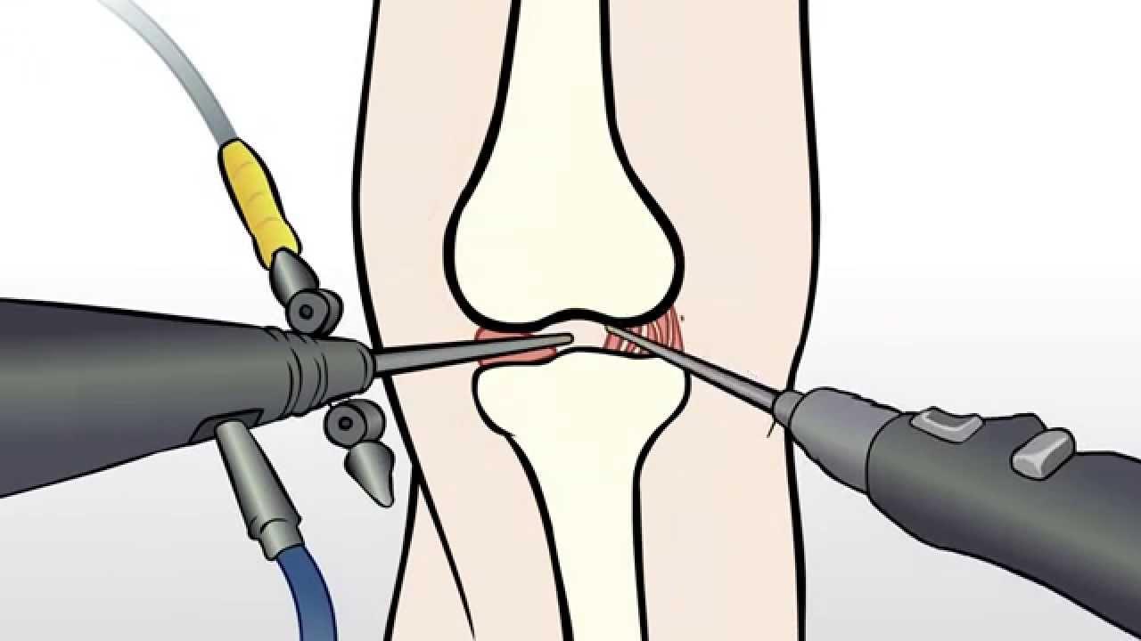 Regenexx Alternative To Knee Meniscus Surgery