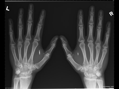 Man gets NFC chip implants in hands to store Bitcoin wallet