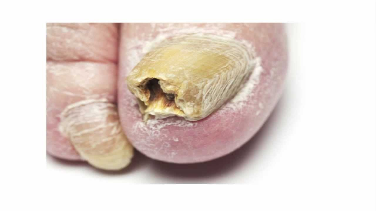 Home Remedies For Fish Fungus