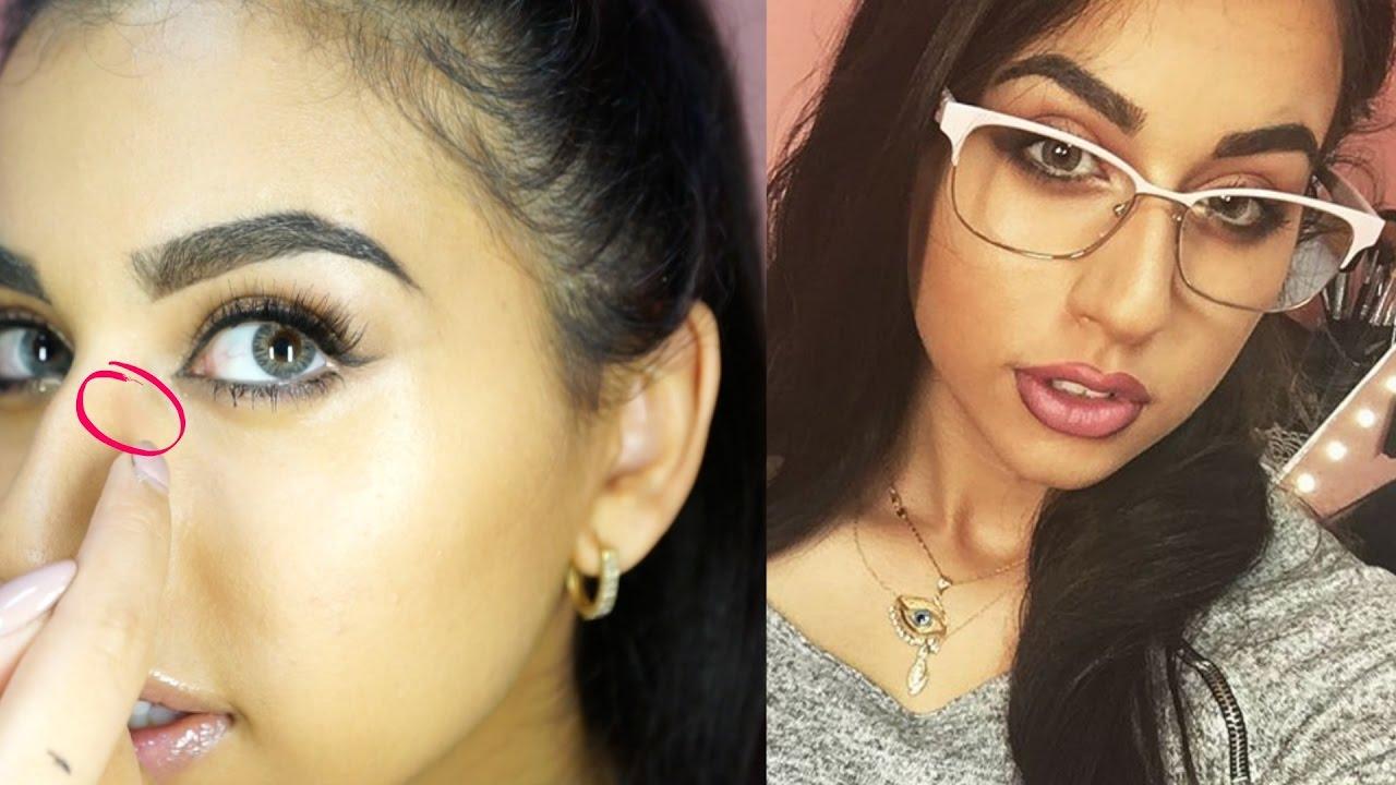 Sunglasses causing facial mark