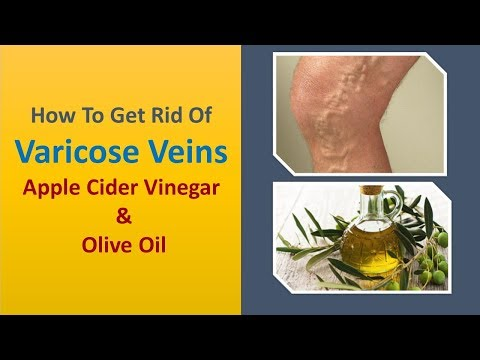 how-to-get-rid-of-varicose-veins-naturally---apple-cider-vinegar-&-olive-oil