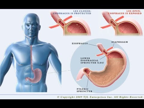 heartburn,-acid-reflux-(gerd)-:-how-to-cure-heartburn-and-acid-reflux-(gerd)