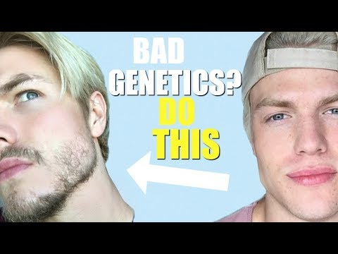 How to Grow a BEARD Even With BAD GENETICS (Minoxidil Update)