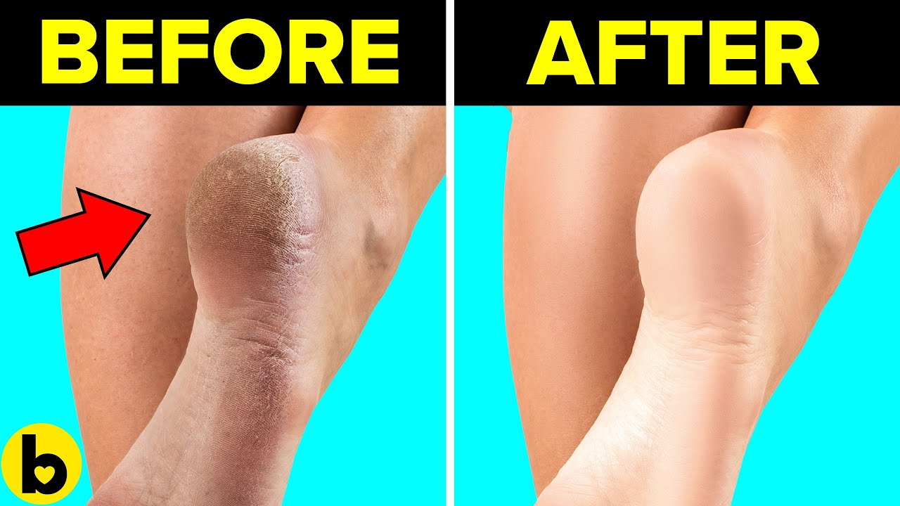 13 Easy Remedies you can use to remove Calluses