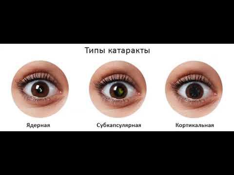 Что такое катаракта и как ее лечить?