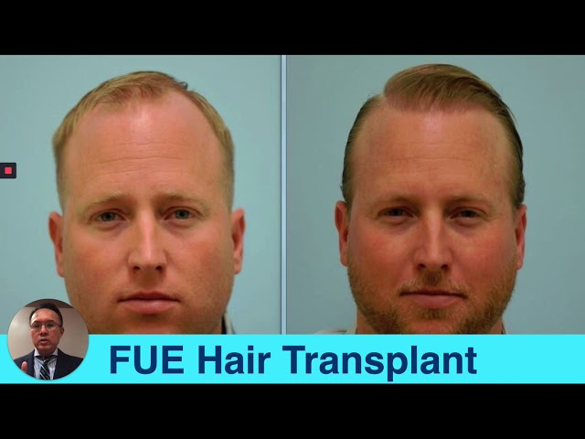 Dallas Hair Transplant Surgeon Dr. Sam Lam Lectures on FUT and FUE