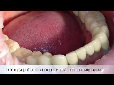 10 Новое в стоматологии  Металлокерамические коронки   протезирование коронками , бюгельный протез ,