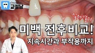 치아미백 전후비교! 무…