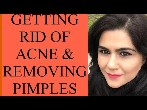 HOW TO GET RID OF ACNE! BEST HOME REMEDY FOR GETTING RID OF ACNE & REMOVE PIMPLES !!