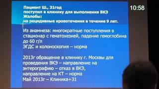 34 Дивертикул Меккеля   причина тонкокишечного кровотечения   Иванова Е В