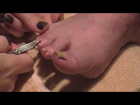 Pedicure Tutorial on Elderly Woman Big Toenail Buildup Cleaning 👣✔️